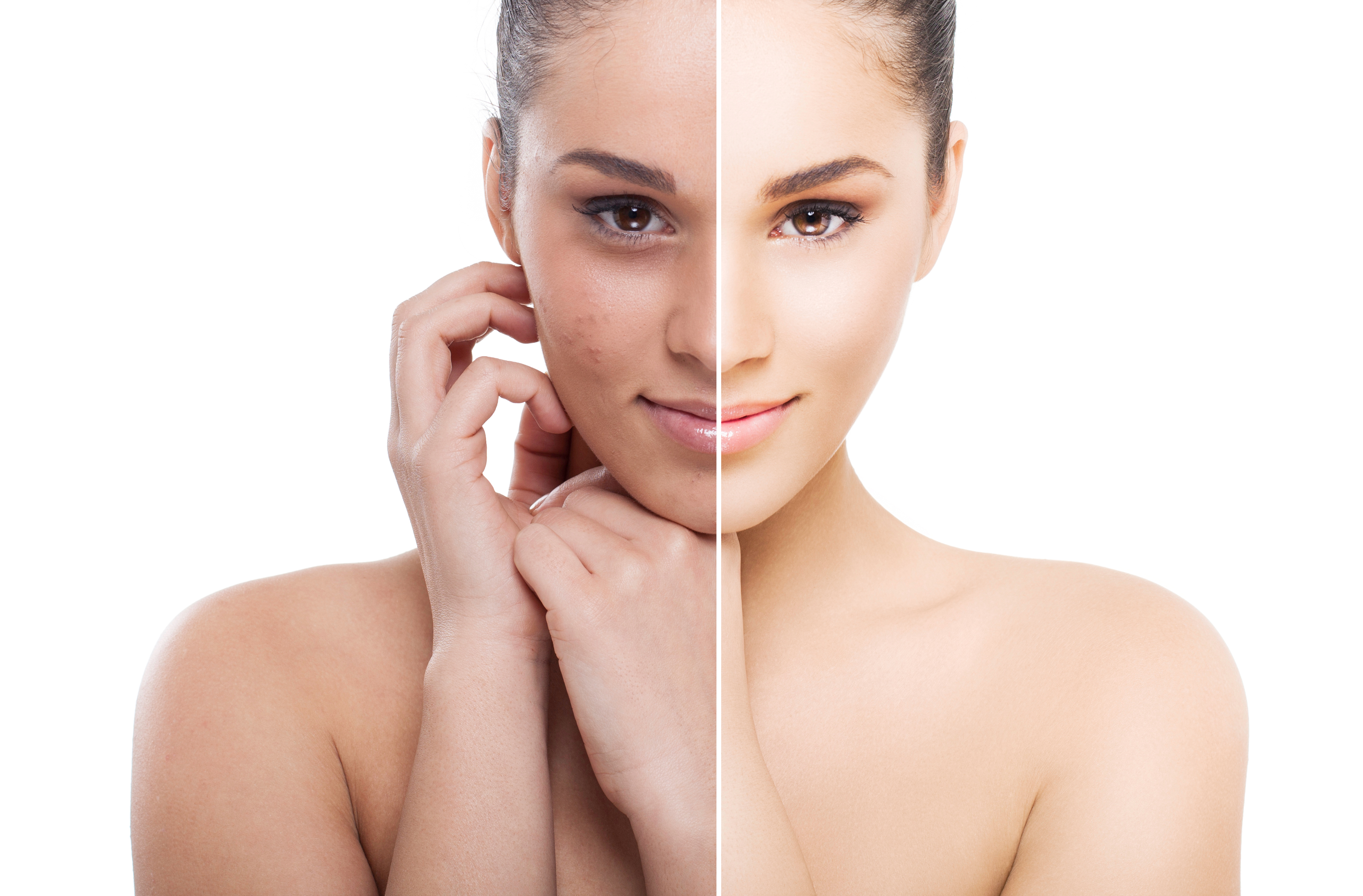 terapia depigmentacyjna